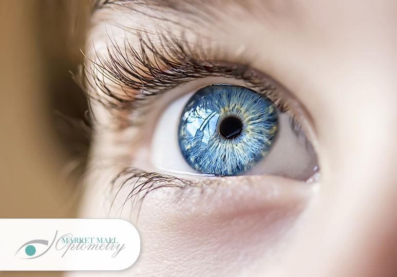 Eye Doctor Calgary NW, Optometrist Calgary NW