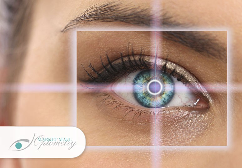 6 Benefits of Lasik Eye Surgery