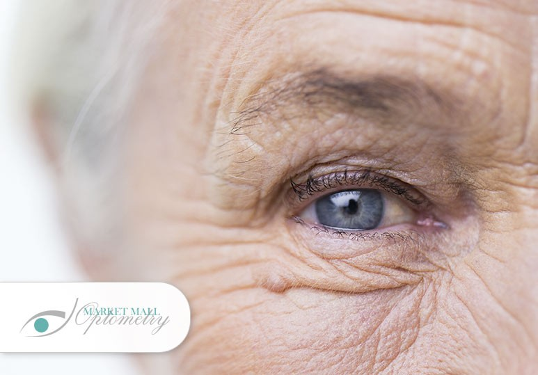 4 Lifestyle Tips to Help Lower Your Risk of Developing Cataracts