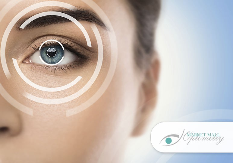 5 Reasons to Consider Laser Eye Surgery