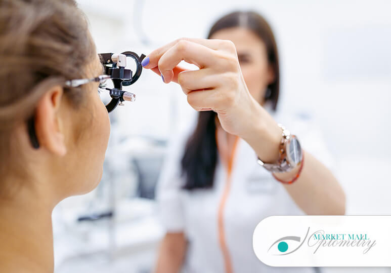 What To Expect During Your Contact Lens Exam