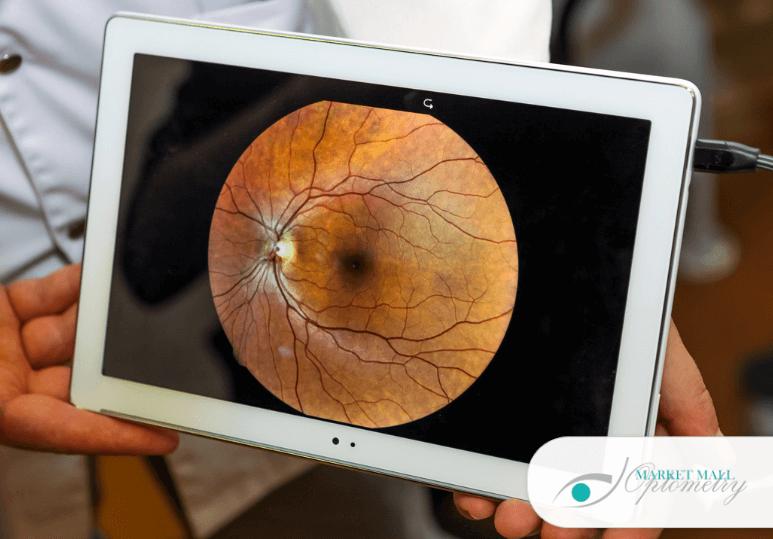 Signs And Symptoms Of Retinal Detachment