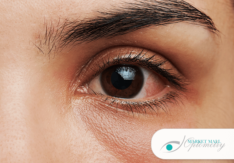 3 Common Corneal Diseases An Optometrist Can Diagnose